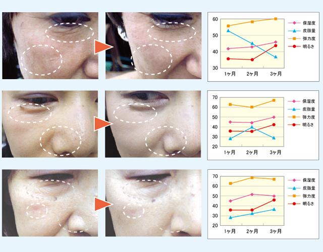 皮膚科医監修によるモニターテストでも実証。皮膚科医監修で、3ヶ月間のモニターテストを実施。弾力や水分量のアップとともに、小ジワやくすみの改善がみられました。